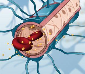 Tumor Nano Gold Trickst Blut Hirn Schranke Aus