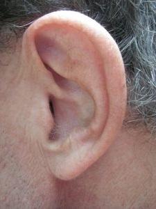 Ohr: Gehörverlust beeinflusst Kognition massiv (Foto: pixelio.de, sparkie)